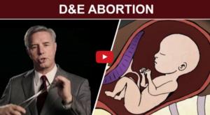 D&E Abortion