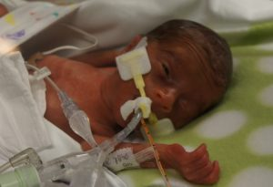 Lydia, born right at 25 weeks and weighing less than two pounds.